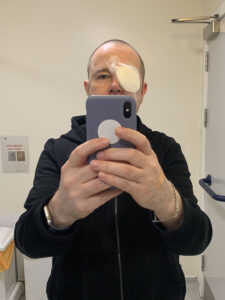 Portrait of Stewart taking a selfie in hospital with white bandages and plastic eyeguard on his right eye.